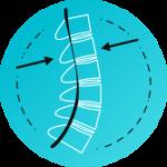 Stenoza, zoženje spinalnega kanala
