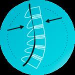 Spinalna stenoza, stenoza spinalnega kanala, hrbtenica