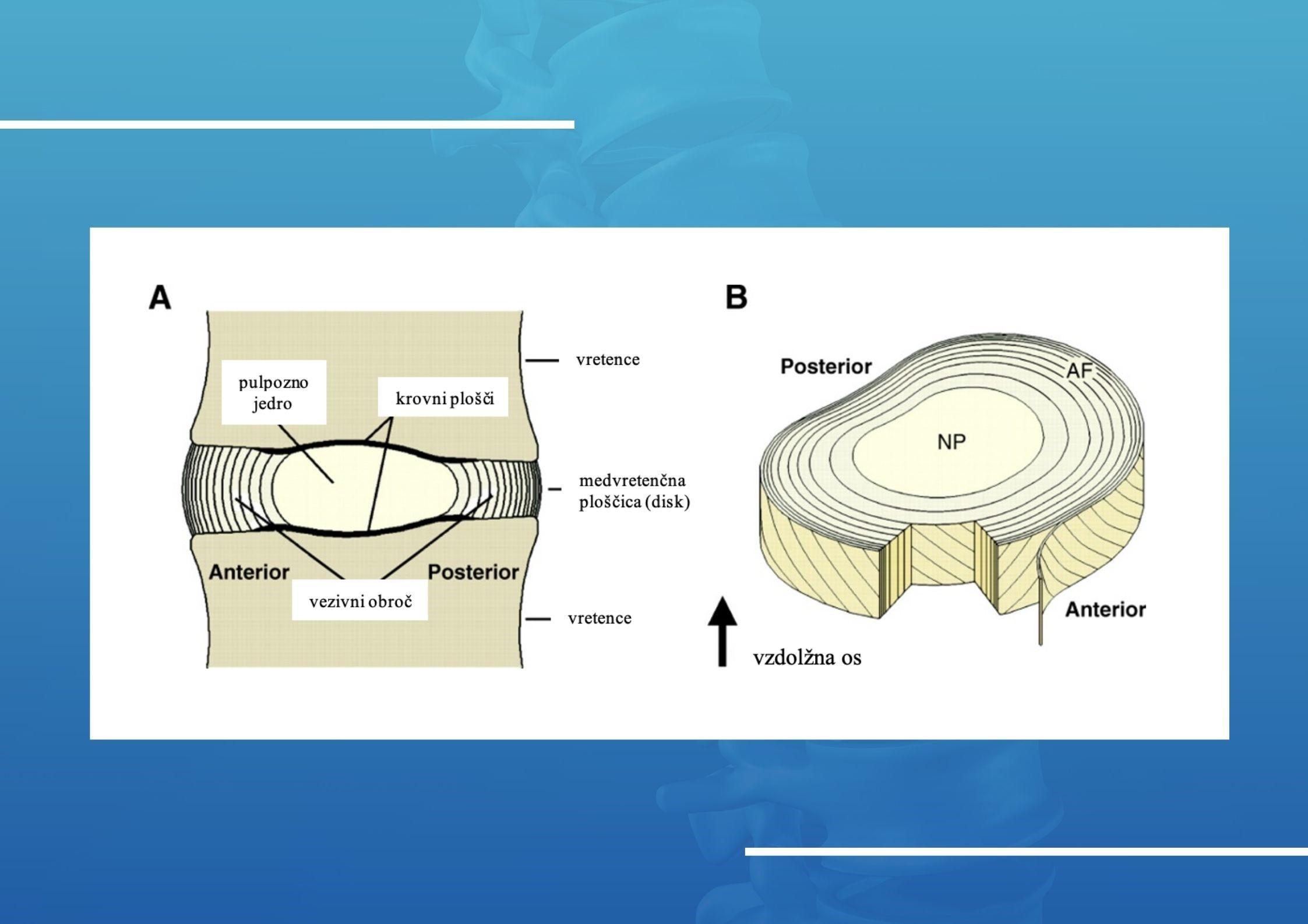 Medvretenčna ploščica ali disk, hernija vzrok